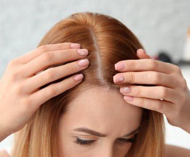 Comment éviter les démangeaisons après une greffe de cheveux